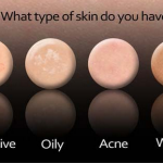 Acne and Your Skin Types