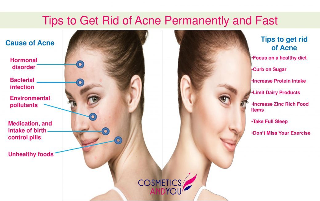 how to get rid of acne permanently home remedies
