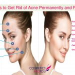 Tips to Get Rid of Acne Permanently and Fast