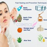 Fast Healing and Prevention Techniques of Acne