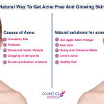 Natural Way to Get Acne Free And Glowing Skin