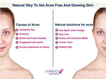 acne-remedies