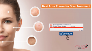 Acne Cream for Scar Treatment