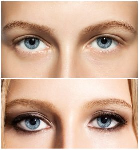 Careprost Solution for Longer, Thicker and Darker Eyelashes