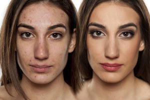Use of Bio Oil for Acne Scars
