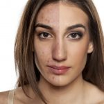 Ways to Treat Hyperpigmentation Using Azelaic Acid