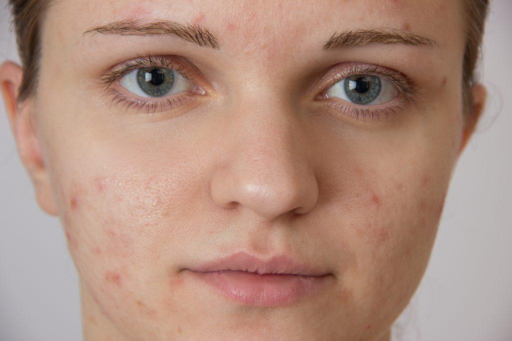 Ivermectin liquid for head lice