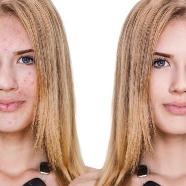 Bio Oil Dehydrated Skin