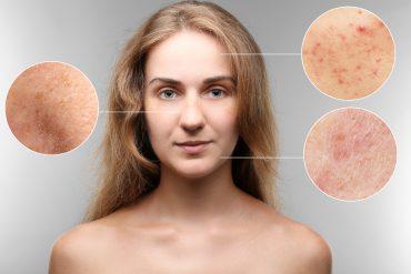 Face bio oil review for Bio Oil