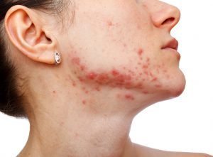 Dark Marks and Acne Scars