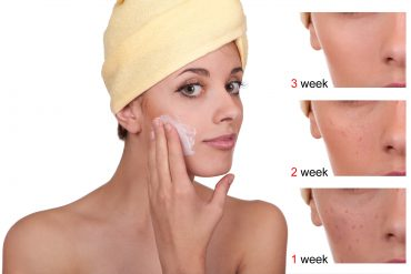 Acne Before and After Using Benzoyl Peroxide