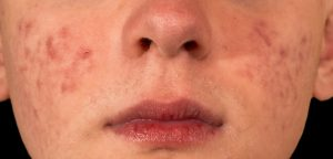 Tretinoin Gel for Acne