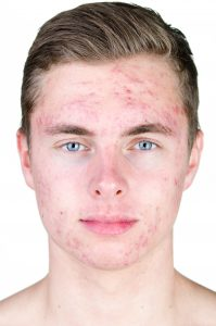 use Benzoyl Peroxide Pimples