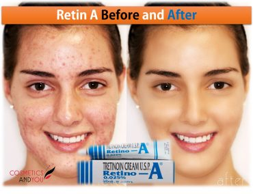 Retin A Before and After