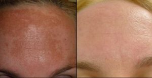 Hydroquinone cream-Best solution to Hyperpigmentation