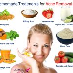 15 Homemade Treatments for Acne Removal