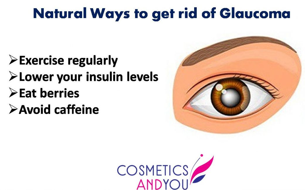 Natural Ways to get rid of Glaucoma