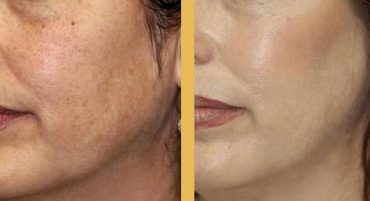 Azelaic Acid Before and After