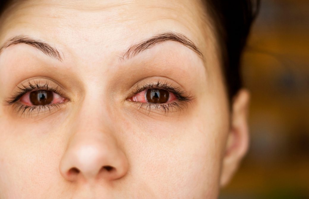 Remedies for Treating Glaucoma Naturally