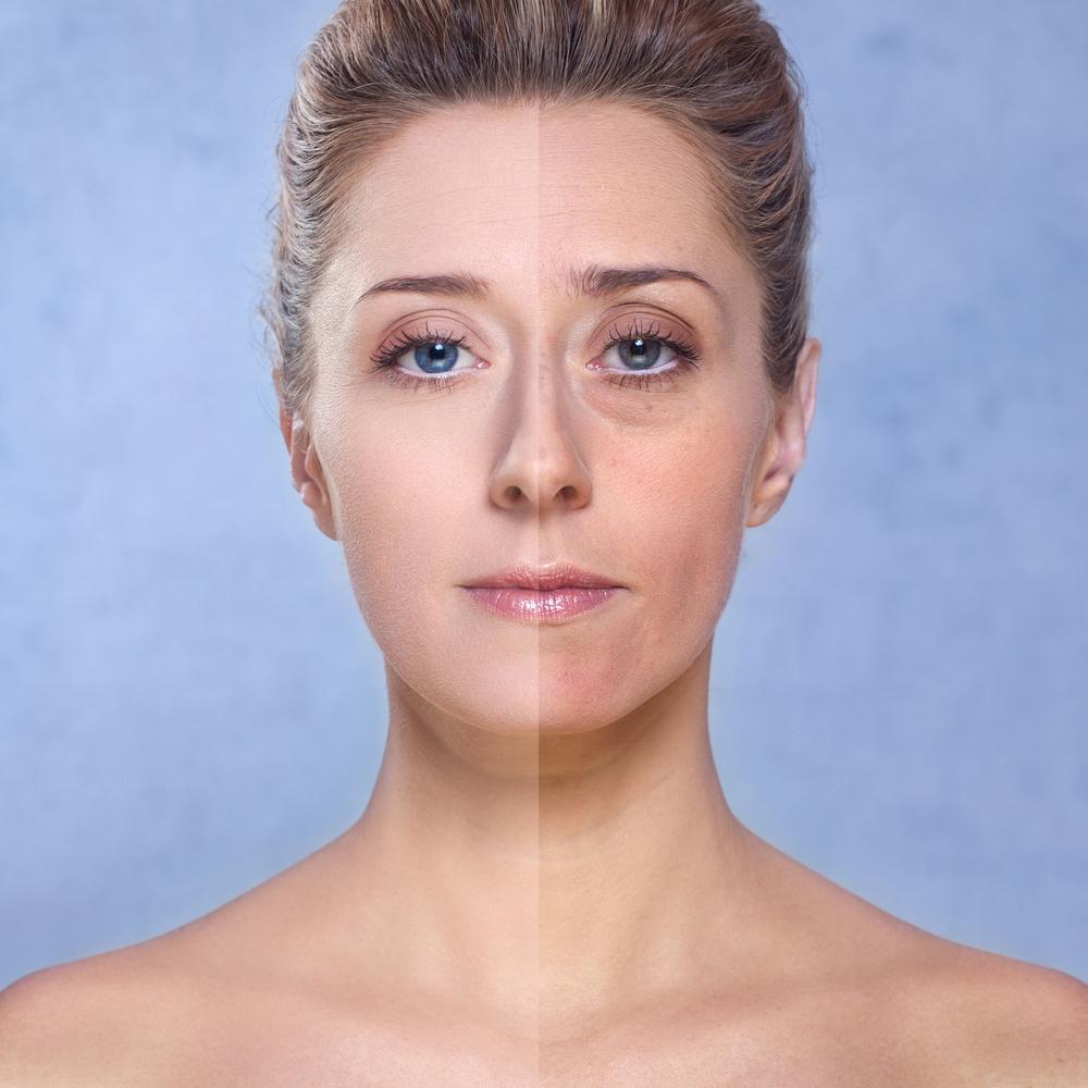 Bio Oil for Aging Skin