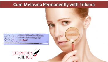How to Cure Melasma Permanently