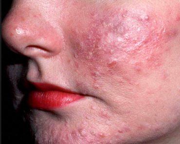 Azelaic Acid Acne